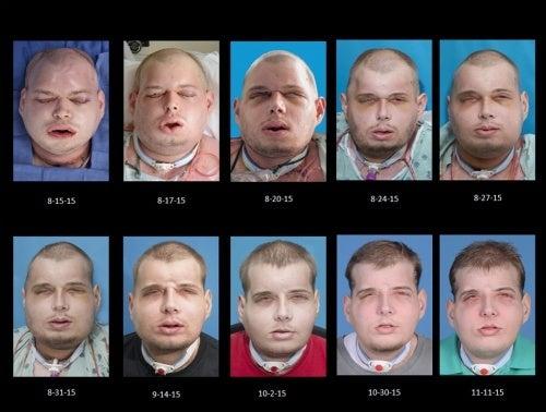 transplante facial etapas