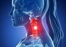 Espondilose cervical: sintomas e tratamentos naturais