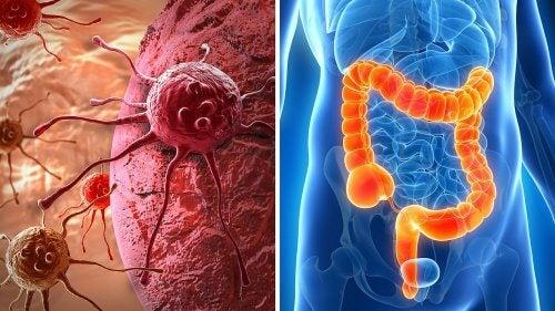 Como detectar os possíveis sintomas de câncer colorretal?