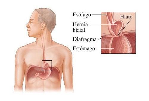 Hérnia de hiato: remédios naturais para seu tratamento