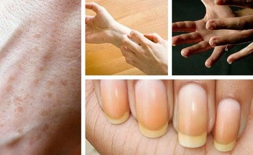 9 coisas interessantes que as mãos refletem sobre a sua saúde