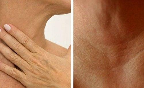 Como prevenir rugas no pescoço e nas mãos
