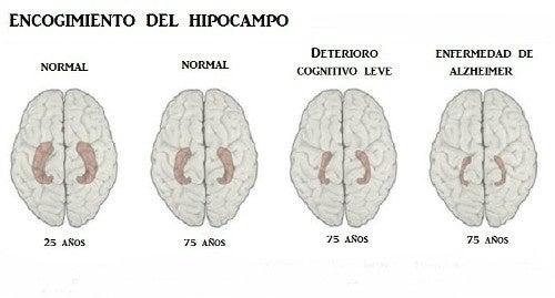 Aprenda a reconhecer os 10 principais sintomas da doença de Alzheimer