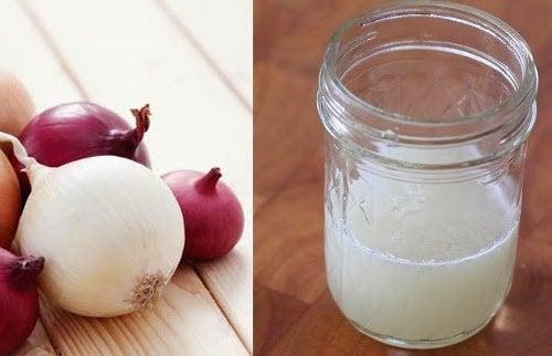 Como usar suco de cebola para controlar a queda de cabelo?