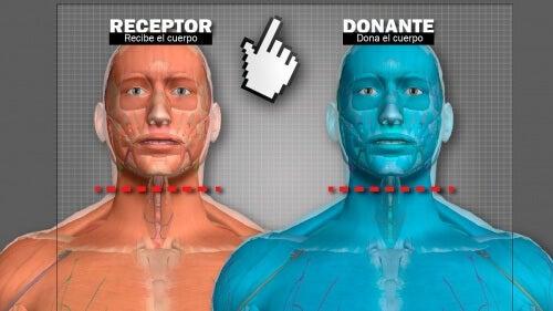 Transplante de cabeça: voluntário russo se oferece como primeiro na história