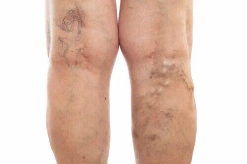 Pernas inchadas podem indicar um problema de saúde mais sério