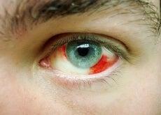 Derrames oculares