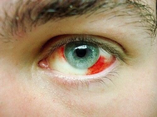 Por que temos derrames oculares?