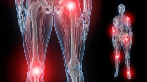 5 soluções naturais para a rigidez nas articulações