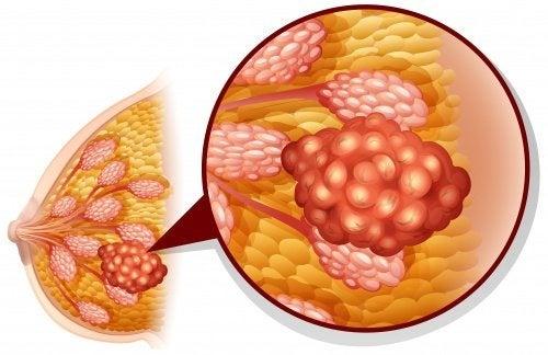 Mamografia para detectar alterações na mama