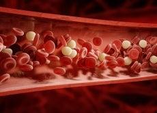Alimentos para desobstruir as artérias
