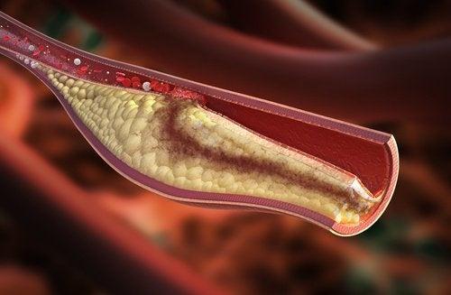 Quais são os sintomas que alertam sobre o colesterol alto?