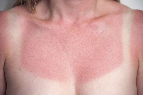 Veja 5 Remedios Caseiros Para Aliviar Queimaduras Solares Imediatamente
