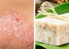 Receita de sabonete caseiro para peles com eczema