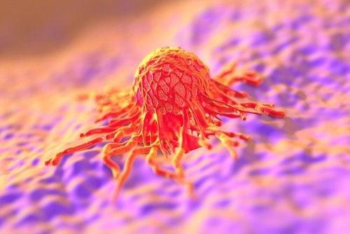 Células do câncer de colo de útero