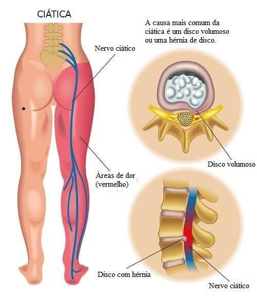 Dói dor perna lombar