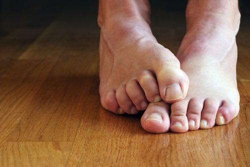 Gel de aloe vera para tratar fungos e bolhas nos pés