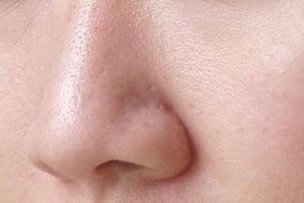 É possível fechar os poros de forma natural?