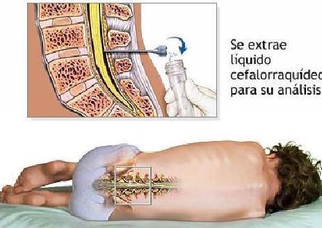 Puncão lombar para detectar tumor ceebral