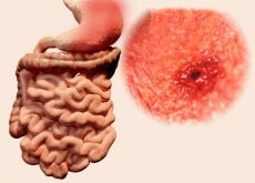 Sucos para aliviar úlceras gástricas