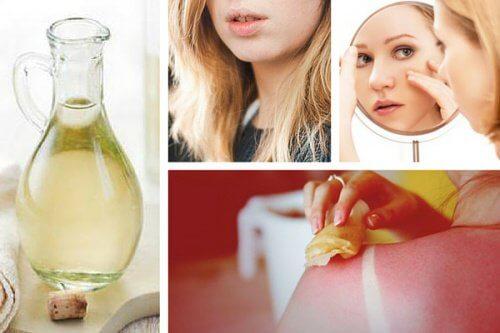 8 usos surpreendentes do vinagre branco