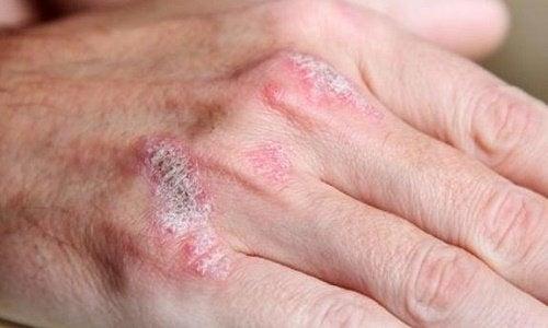 5 coisas que você deve saber sobre as doenças autoimunes