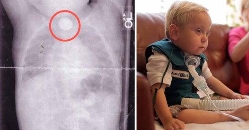 Conheça a história do bebê que sofreu danos irreparáveis por engolir uma pilha de botão