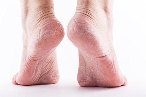 Cura dos calcanhares rachados e dos calos com este potente remédio caseiro