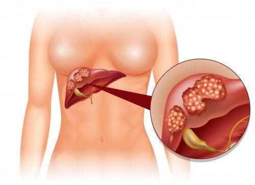Maçãs favorecem a função do fígado