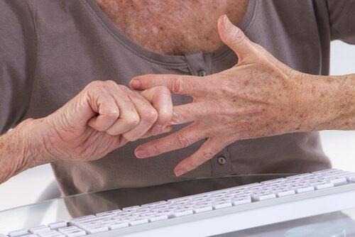 Mãos com artrite