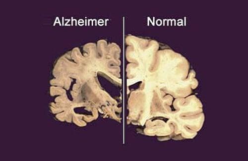 prevenir_o_alzheimer_cerebro_com_alzheimer