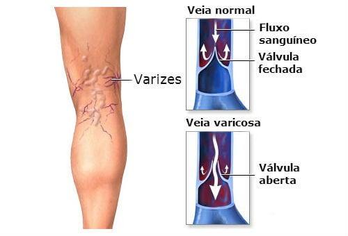 varizes_remedio_natural_com_aloe_vera