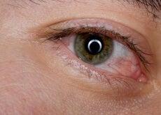 Tratar os olhos cansados