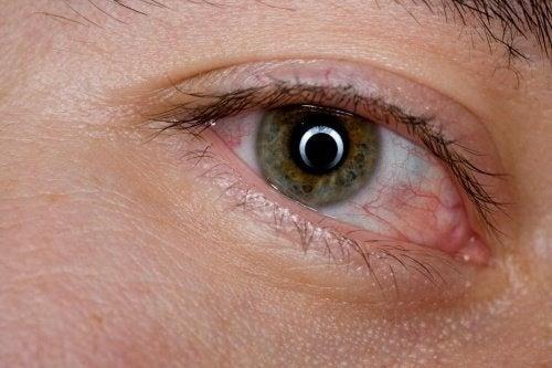 6 remédios caseiros para aliviar a sensação de olhos cansados
