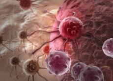 De acordo com novo estudo, esta pode ser a PRINCIPAL causa do câncer