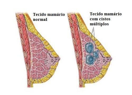 Dicas para prevenir e detectar a tempo os cistos nos seios