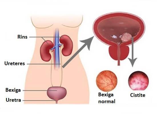 8 remédios naturais para curar a cistite