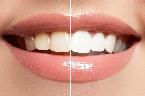 Limão como clareador dental