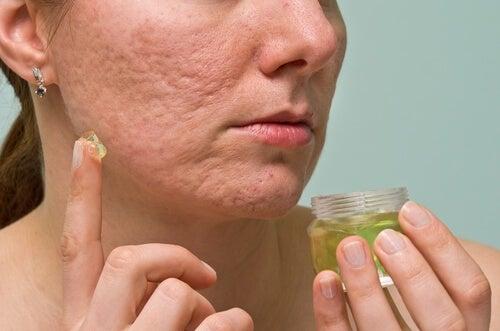 Combater a acne com água oxigenada
