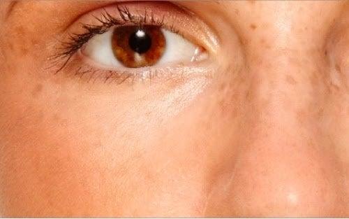 Atenuar as manchas na pele com água oxigenada