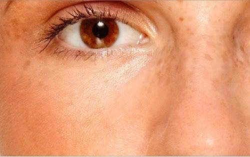 Manchas na pele causadas pela síndrome do ovário policístico