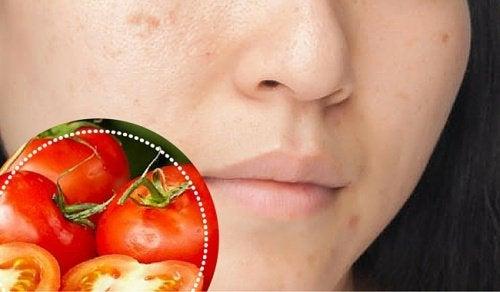 6 ingredientes naturais para atenuar manchas no rosto
