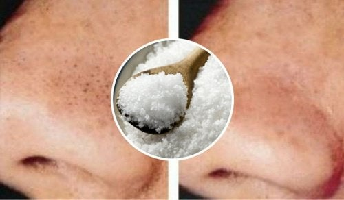 Como utilizar o sal contra cravos e espinhas