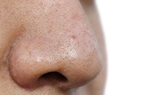 5 máscaras faciais para remover as espinhas