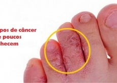 Tipos de câncer que poucos conhecem