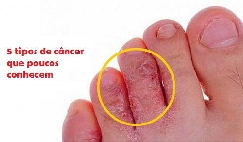 5 tipos de câncer que poucos conhecem