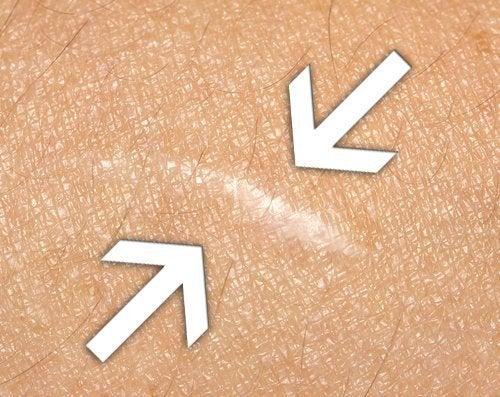 Remédios para cicatrizar feridas