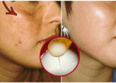 Remédio para clarear a pele do rosto