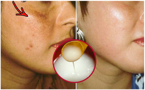 Creme natural para clarear a pele do rosto