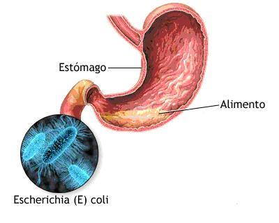Ilustração sobre infecção estomacal